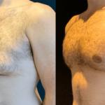 NPS_funderburk-before-after