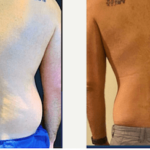 NPS_funderburk-before-after-male-flank-2.16-1-min