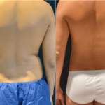 NPS_funderburk-before-after-male-flank-2.16-2-min