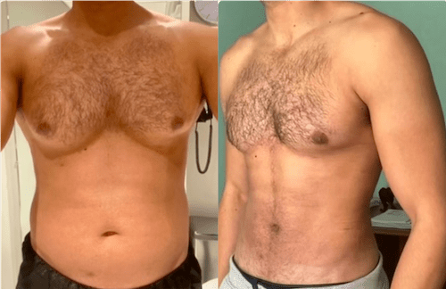 NPS_funderburk-before-after-male-hd-lipo-2.16-5-min