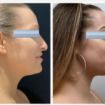 NPS_funderburk-before-after-neck-lipo