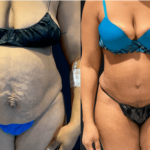 nps_before-after-abdominoplasty-1-3.16