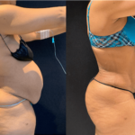 nps_before-after-abdominoplasty-2-3.16