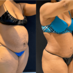 nps_before-after-abdominoplasty-3-3.16