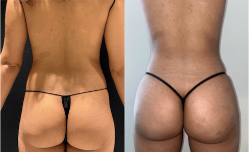 nps_before-after-athletic-bbl-1-3.3-min