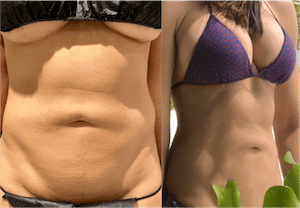 nps_before-after-double-reverse-mini-tummy-tuck-min