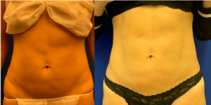 nps_before-after-loose-skin-lipo-360-min