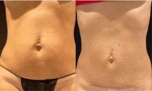 nps_before-after-moderate-skin-lipo-360-min
