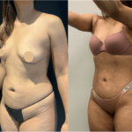 nps_before-after-mommy-makeover-2-3.16