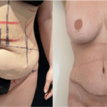 nps_before-after-tummy-tuck-abdominolasty-mommy-makeover-3.18-min