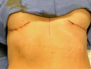 nps_double-reverse-tummy-tuck-scars-min