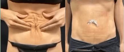nps_double-reverse-tummy-tuck-skin-tightness-min