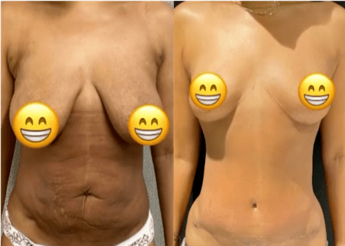 nps_modern-mommy-makeover-breasts-min