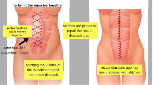 nps_reverse-tuck-muscle-repair-min