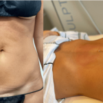 nps_before-after-c-section-repair-4.14-min