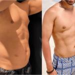 nps_funderburk-before-after-male-hd-lipo-2-4.26-min
