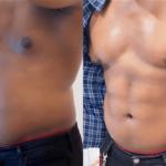 nps_funderburk-before-after-male-hd-lipo-4.26-min