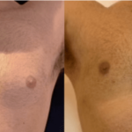 nps_gynecomastia-before-after-4.5-min
