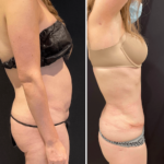 nps_tummy-tuck-before-after-4.29-min