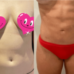 nps_before-after-abdominal-lipo-4.29-min