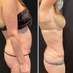 nps_before-after-tummy-tuck-4.29-min