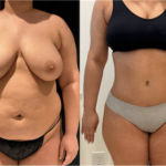 nps_dr-funderburk-abdominoplasty-before-after-4.25-min