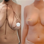 nps_dr-funderburk-breast-reduction-before-after-4.25-min