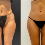 nps_dr-funderburk-thigh-waist-before-after-4.25-min