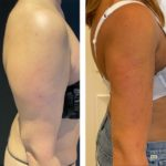 NPS_before-after-arms-6.23.21