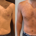 NPS_before-after-male-6.28.21-min