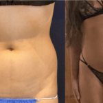 nps_before-after-lipo-360-abdomen