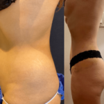nps_before-after-lipo-360-waist