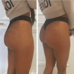 nps_before-after-non-surgical-bbl-6.14.21-min