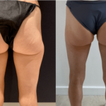 nps_before-after-thighs-6-18-min