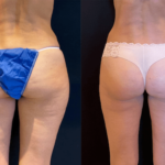 nps_before-after-thighs-6.9.21-min (1)