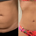 nps_before-after-tummy-tuck