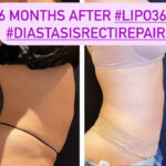 nps_before-after-tummy-tuck-6-18
