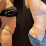 nps_before-after-tummy-tuck-6.9.21