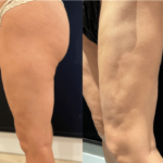 NPS_before-after-coolsculpting-revision-7.29-min