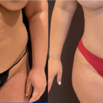 NPS_before-after-tummy-tuck-2-7.16-min