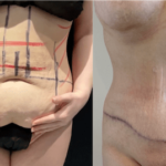 nps_before-after-tummy-tuck-min