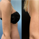 nps_before-after-arms-lipo-8.25-min