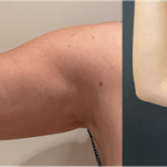 nps_before-after-arm-lipo-9.14-min