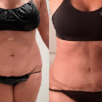 nps_before-after-tummy-tuck-9.5.21-min