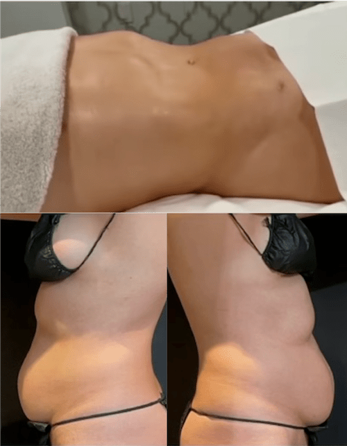 nps_coolsculpting-revision-collage-min