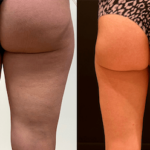 nps_before-after-thigh-lipo-10.16-min