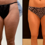 nps_before-after-thighs-lipo-10.16-min