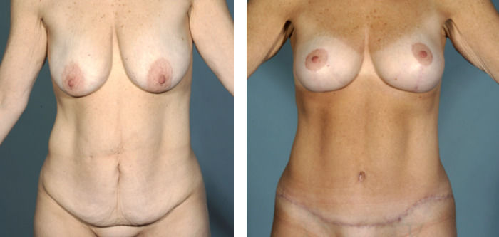 Breast Lift & Tummy Tuck